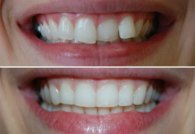 Подпиливание зубов до и после фото