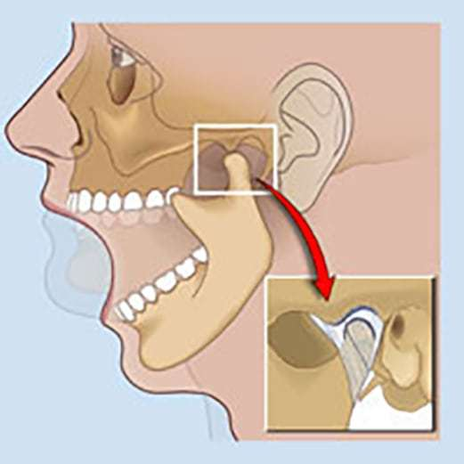 Что делать, если при открытии рта или жевании щелкает челюсть?