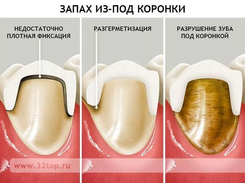 Зубочистки: польза или вред?