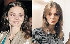 Боярская елизовета до и после пластики +фото и биография лизы