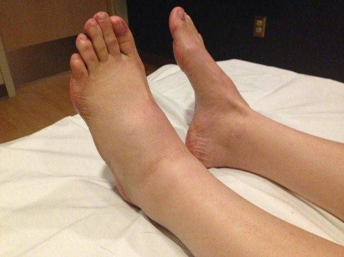 Климакс отеки ног лечение