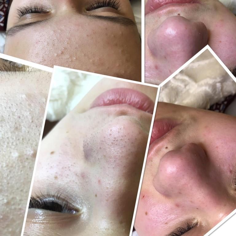 Ультразвуковая чистка лица — уход без травм и осложнений