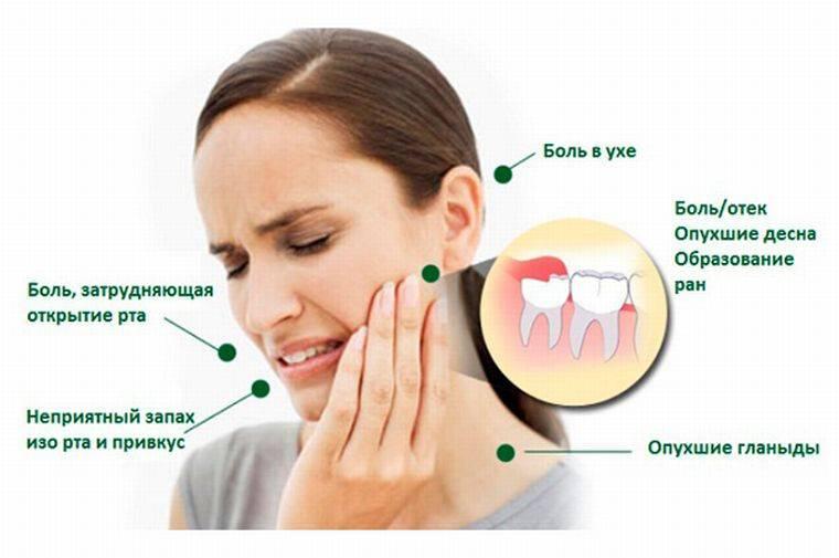 Головная боль после удаления зуба