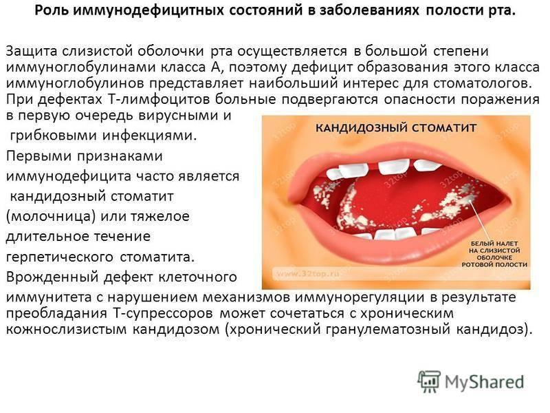 Аллергический стоматит лечение у взрослых. аллергический стоматит лечение