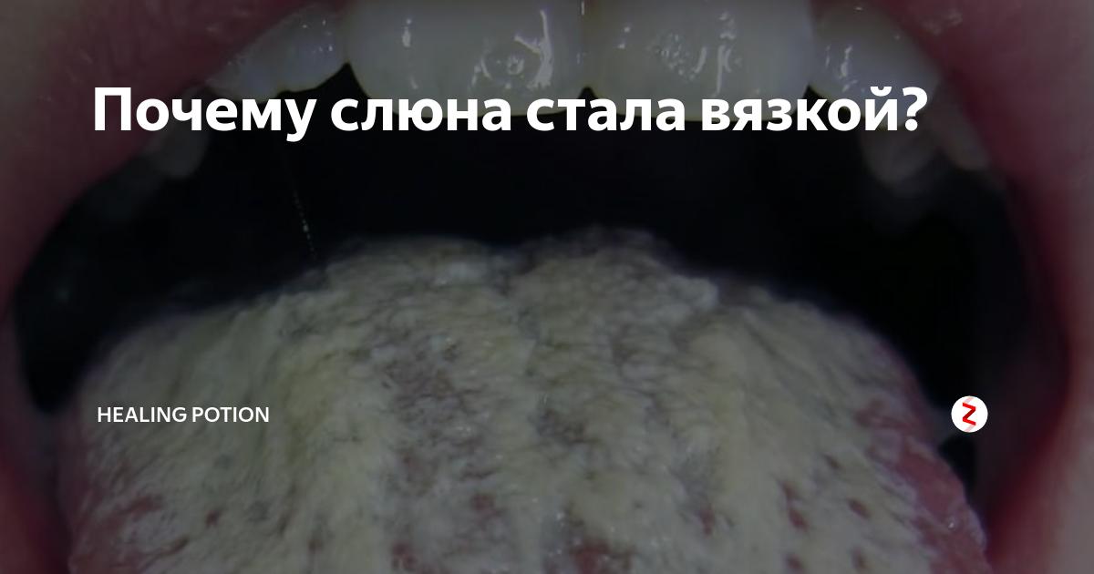 Почему возникает вязкая слюна во рту и как от нее избавиться?