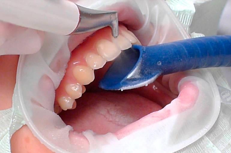 Особенности чистки зубов ультразвуком: плюсы и минусы, фото до и после, видео удаления зубного камня