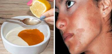 Отбеливающие средства для лица от пигментных пятен: крема, маски, косметология