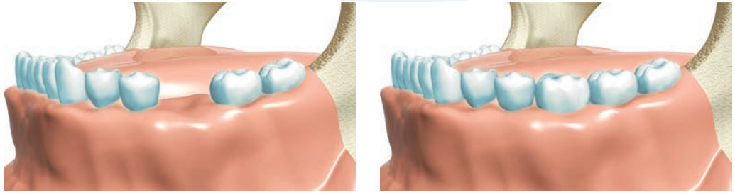 Что такое формирователь десны. установка на имплантат