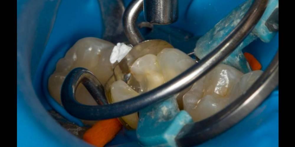 Передний зуб чернеет изнутри. причины почернения зуба под пломбой