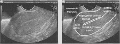 Почему утолщается стенка матки. причины и лечение утолщения стенки матки