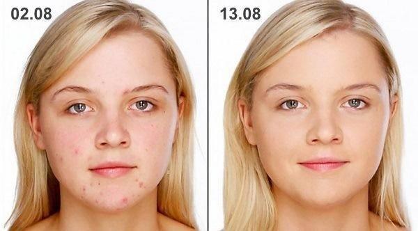 Цинковая мазь от морщин — отзывы врачей-косметологов