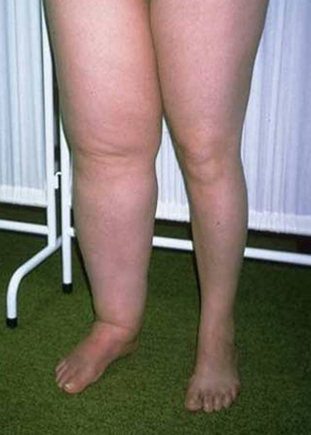 Пастозность голеней и стоп