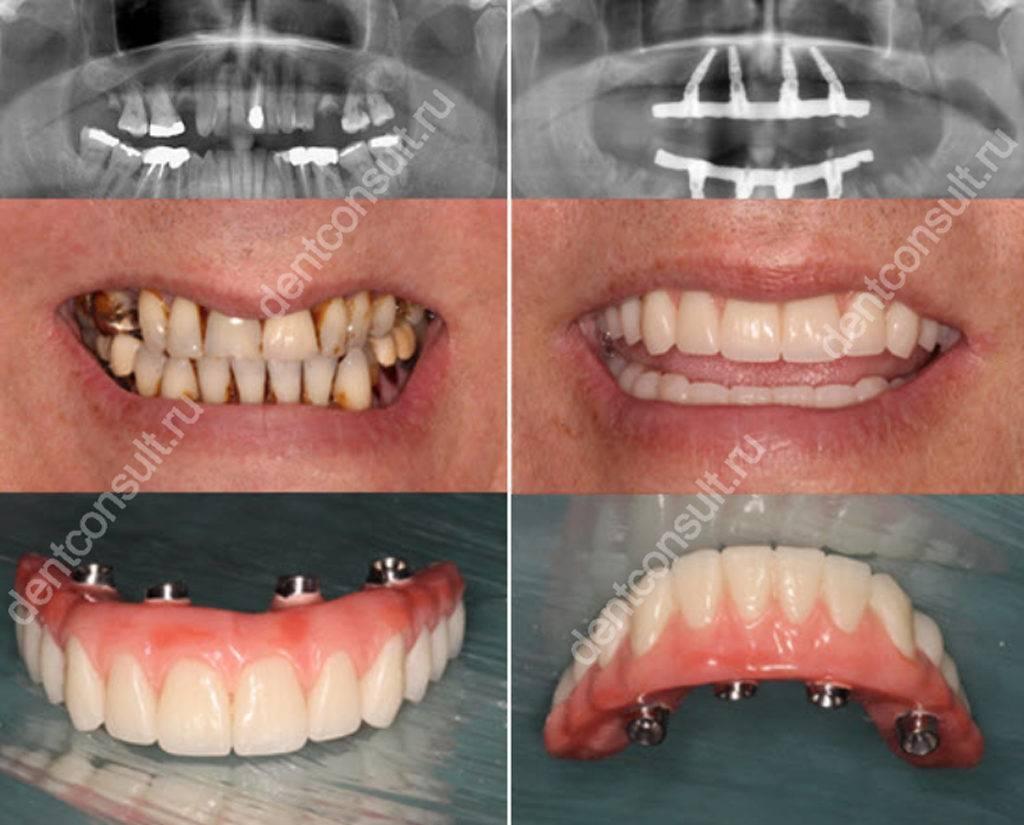 Что делать пациенту, если болит зуб рядом с имплантом?