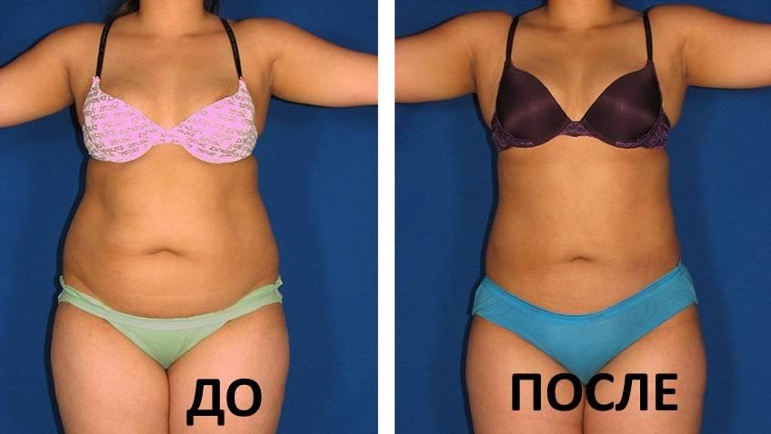 Мезотерапия тела для похудения: отзывы