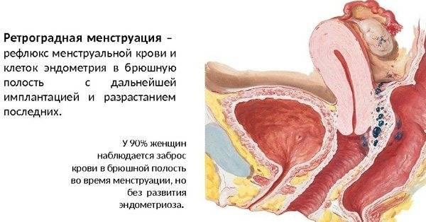 Признаки и способы лечения миомы матки с аденомиозом