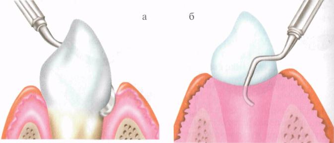 Как избавиться от зубного камня в стоматологии и в домашних условиях