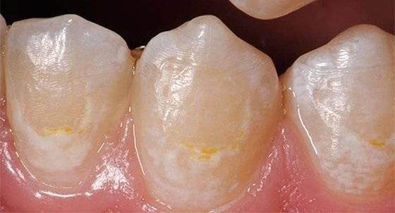 Сохранить здоровье зубов - не сложно! средний кариес: его лечение и диагностика