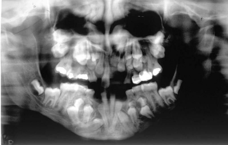 Понятие сверхкомплектных зубов, причины полиодонтии у ребенка и взрослого человека, симптомы с фото и лечение аномалии