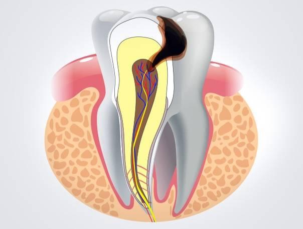 Осложнения и последствия кариеса зубов