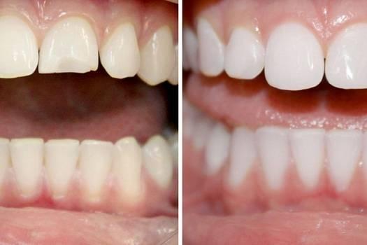 Сколько стоит нарастить зуб в туле