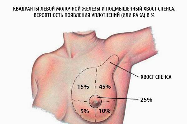 Гормональные, циклические и нециклические причины болей при прикосновении к грудной железе
