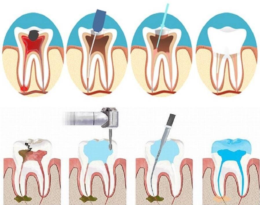 После лечения зубов повысилась чувствительность