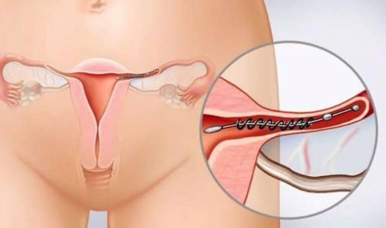 Перевязка маточных труб как радикальный метод контрацепции