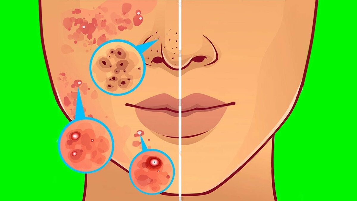 Прыщи на лице и теле у взрослых мужчин и женщин: причины
