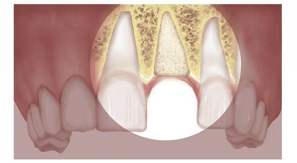 Чем опасна зубная имплантация