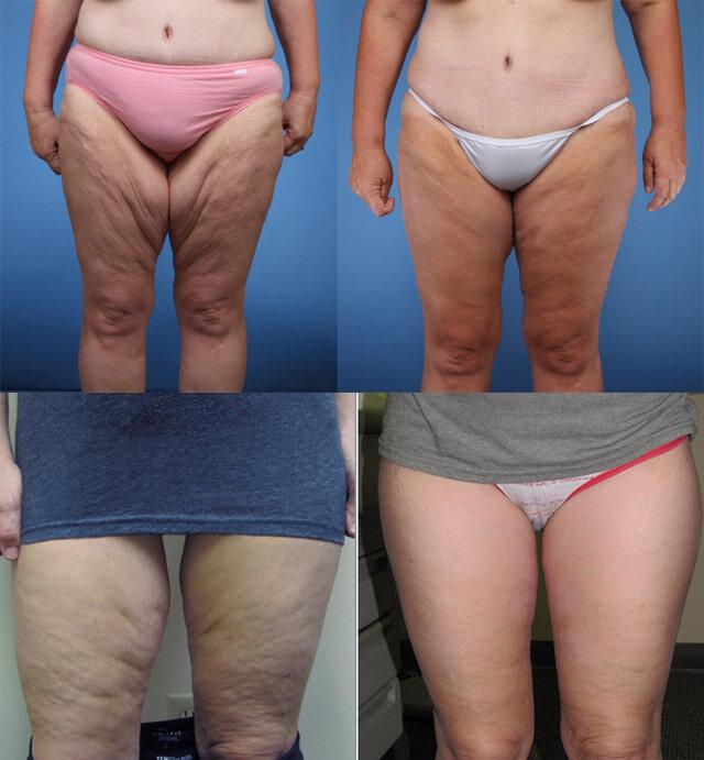 Как подтянуть обвисшую кожу тела после стремительного похудения в домашних условиях: массаж, обертывания, упражнения и гимнастика для упругости тела