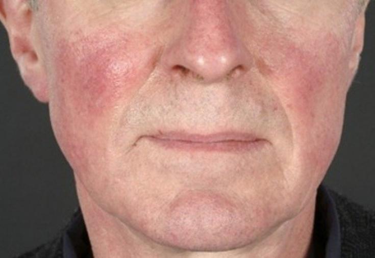 Кожные заболевания на лице лечение