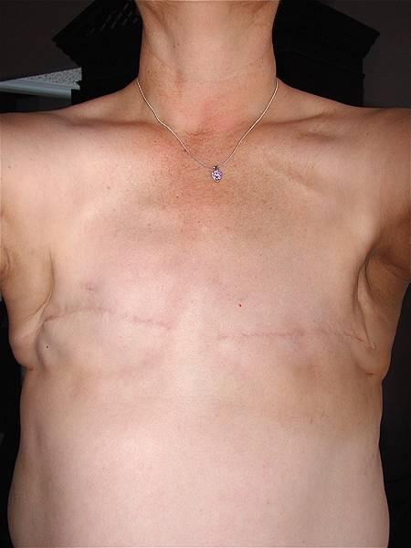 Рецидив рака молочной железы: что делать, если болезнь настигла вновь, и как часто это происходит?