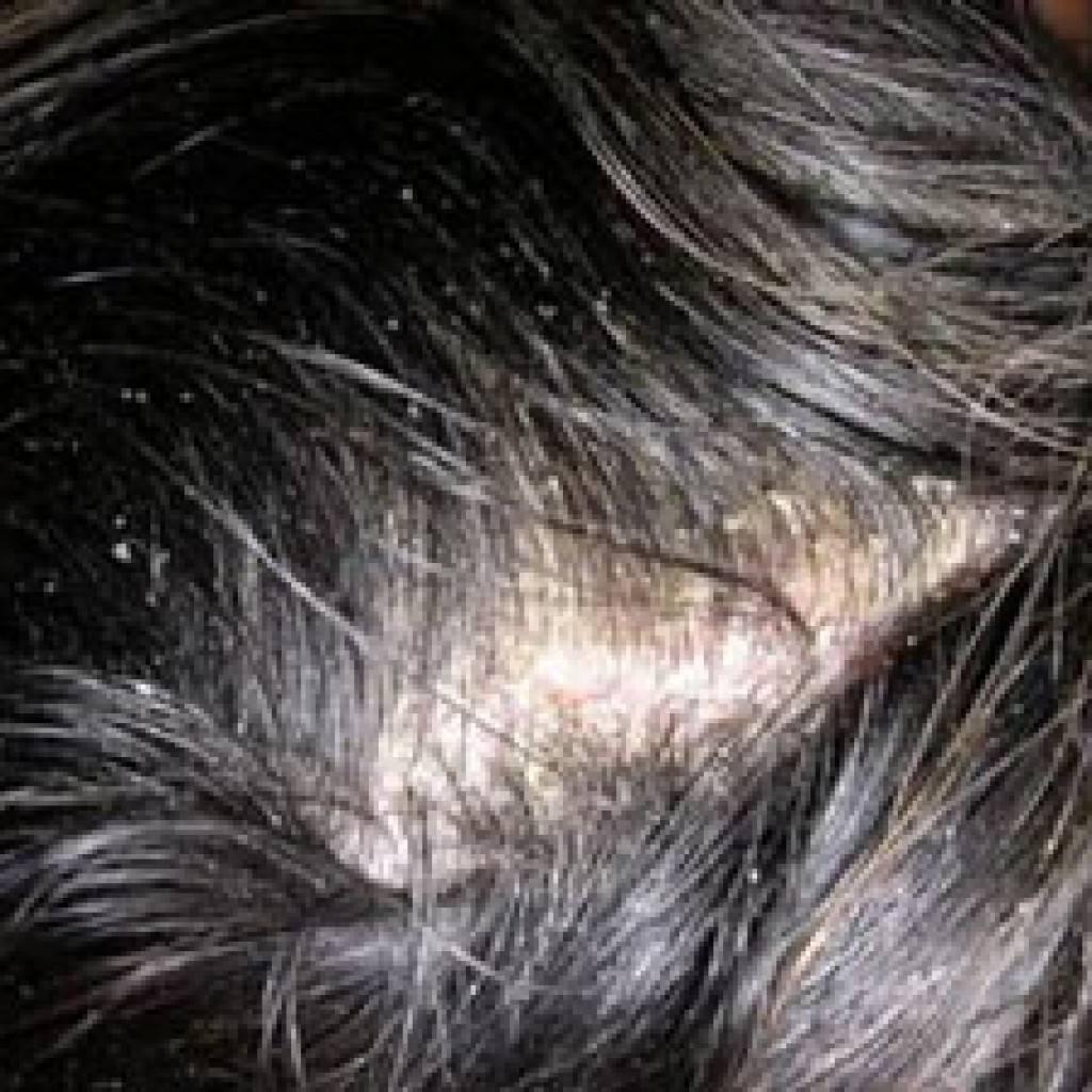 Как очистить кожу головы от сальных пробок. как очистить кожу головы народными рецептами