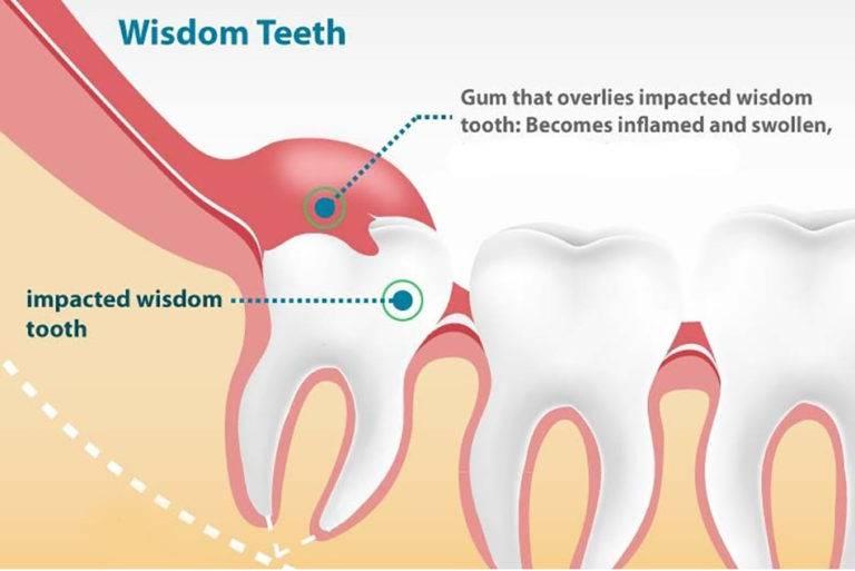 Как снять опухоль зуба или десны со щеки в домашних условиях?