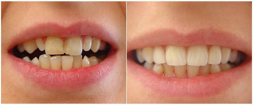 Технологии исправления кривых зубов винирами: обзор используемых материалов