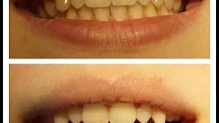 Как заточить зубы под клыки