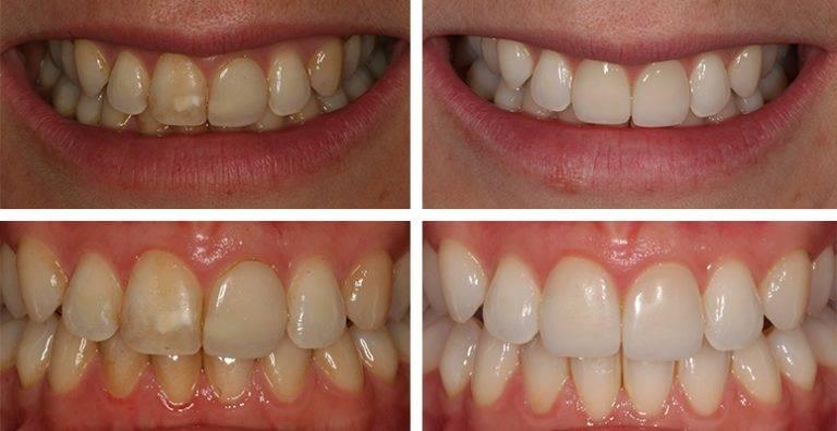 Причины и способы решения проблемы тетрациклиновых зубов