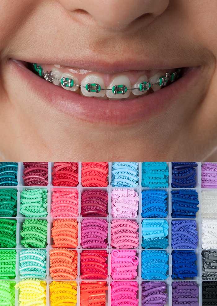 Брекеты с цветными лигатурами