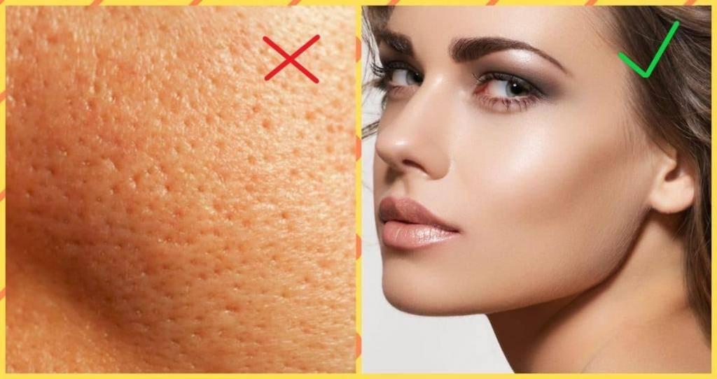 Как сузить поры на коже: советы косметологов
