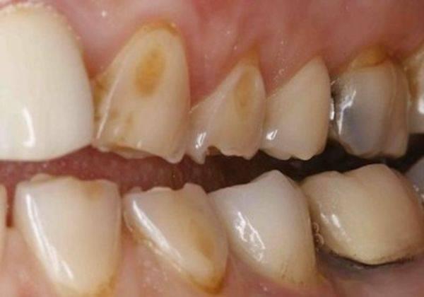 Что такое тетрациклиновые зубы? отбеливание тетрациклиновых зубов