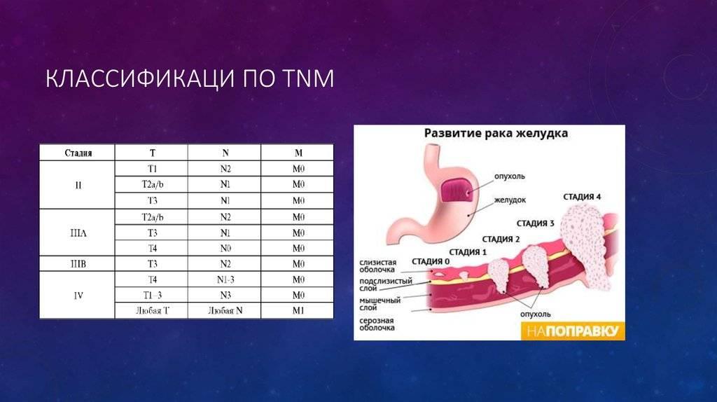 Классификация рака шейки матки