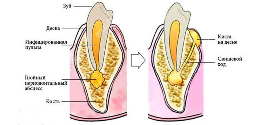 Абсцесс зуба: причины, симптомы, лечение, профилактика