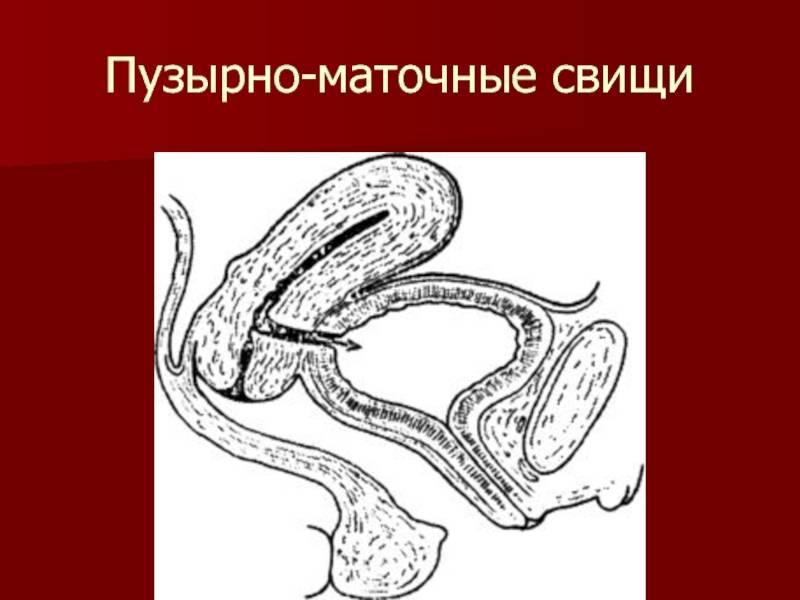Кишечно-мочепузырный свищ                (мочекишечный свищ, кишечный мочепузырный свищ)