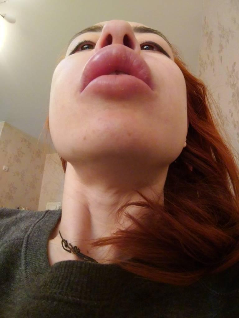 Уход за губами и осложнения после увеличения губ гиалуроновой кислотой