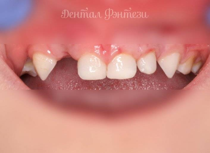 Пульпит молочных зубов у детей: нужно ли лечить, если не болит