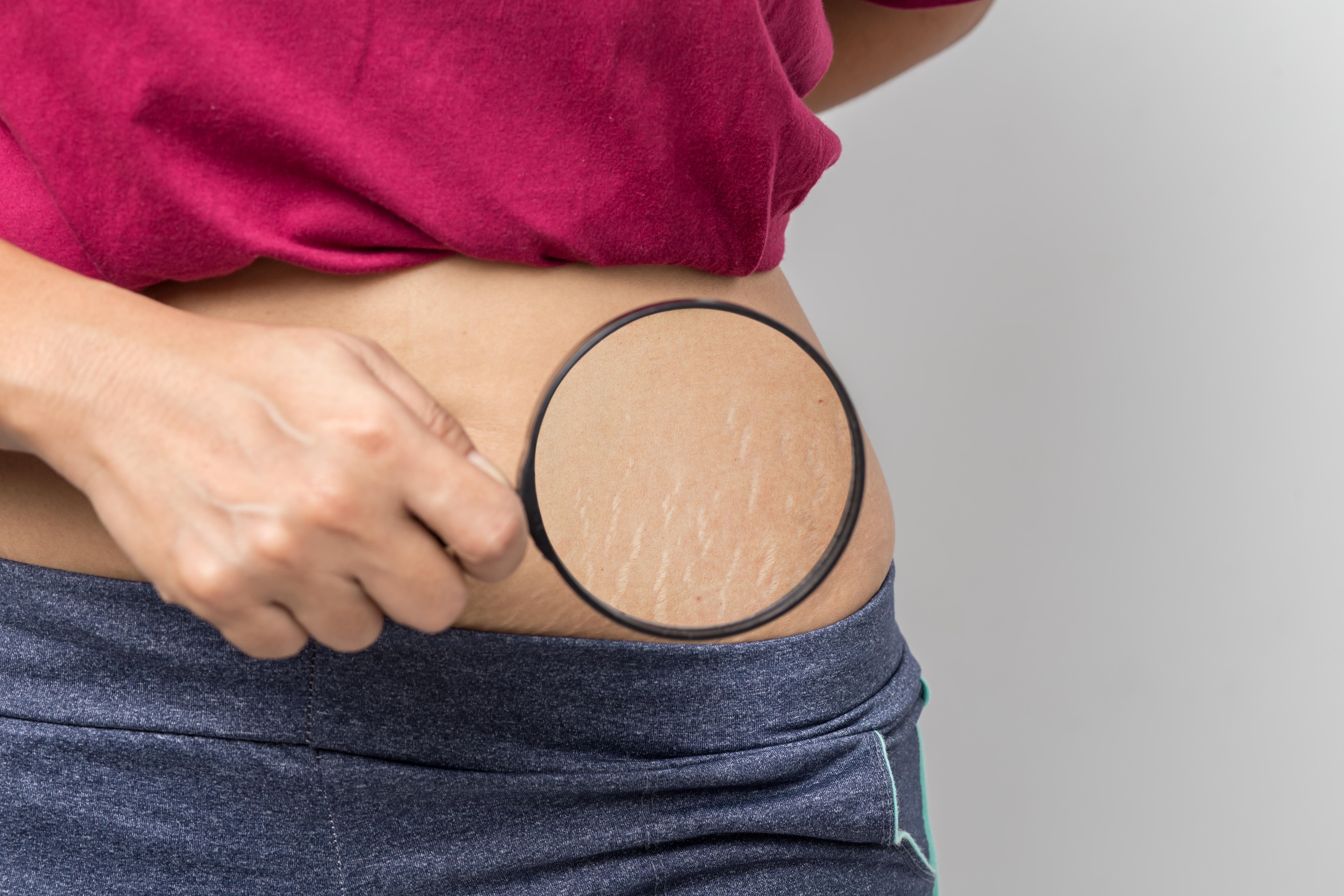 Мезотерапия против растяжек: как убрать в салоне и в домашних условиях
