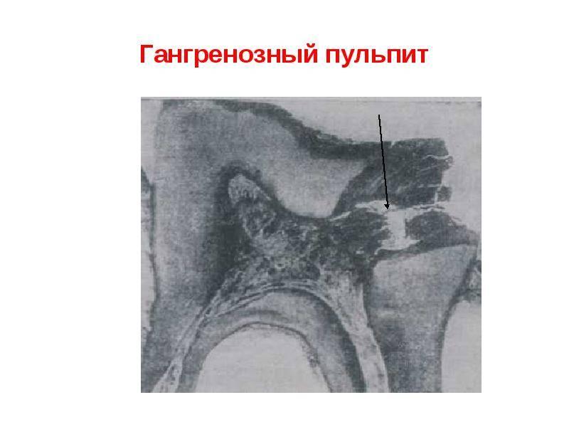 Лечение хронического фиброзного пульпита