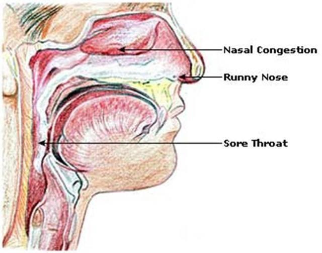 Как избавиться от мокроты и слизи в горле, причины и лечение