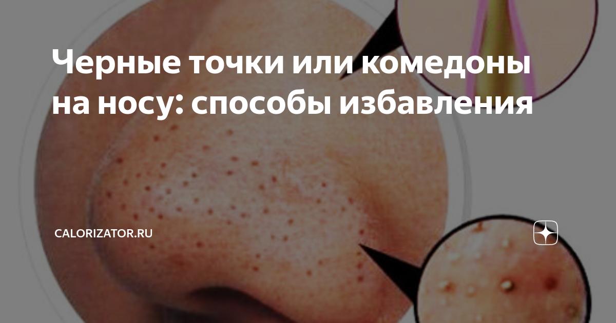 Комедоны: как избавиться от чёрных точек на лице. черные точки на лице — как избавится и предотвратить их появление