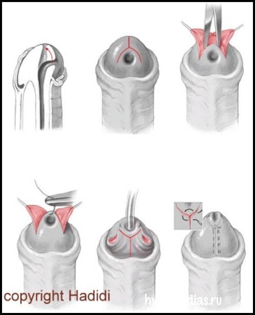 Удаление уздечки крайней плоти: плюсы и минусы +фото до и после операции